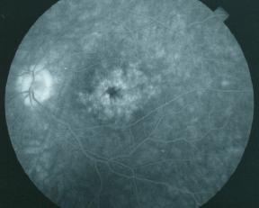 Diabetes Eye Care Art